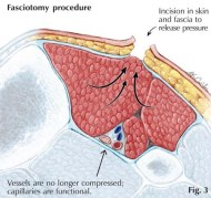 Compartment-Syndrome XẺ GIẢM ÁP FASCIOTOMY