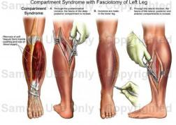 Compartment-Syndrome XẺ GIẢM ÁP FASCIOTOMY2
