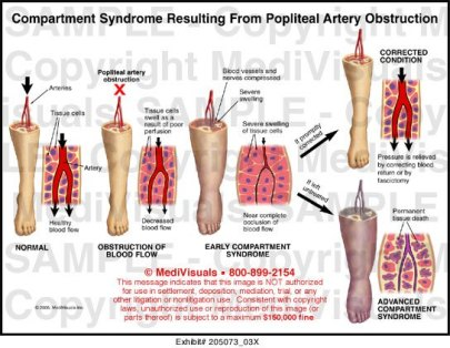 Compartment-Syndrome2