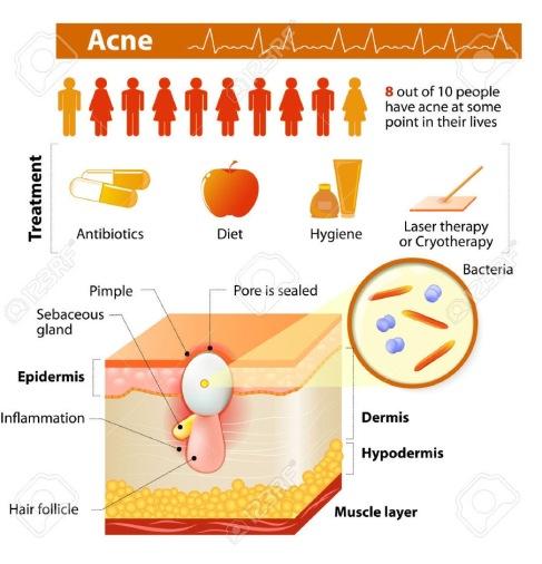 acnea1