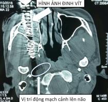 dinh-4